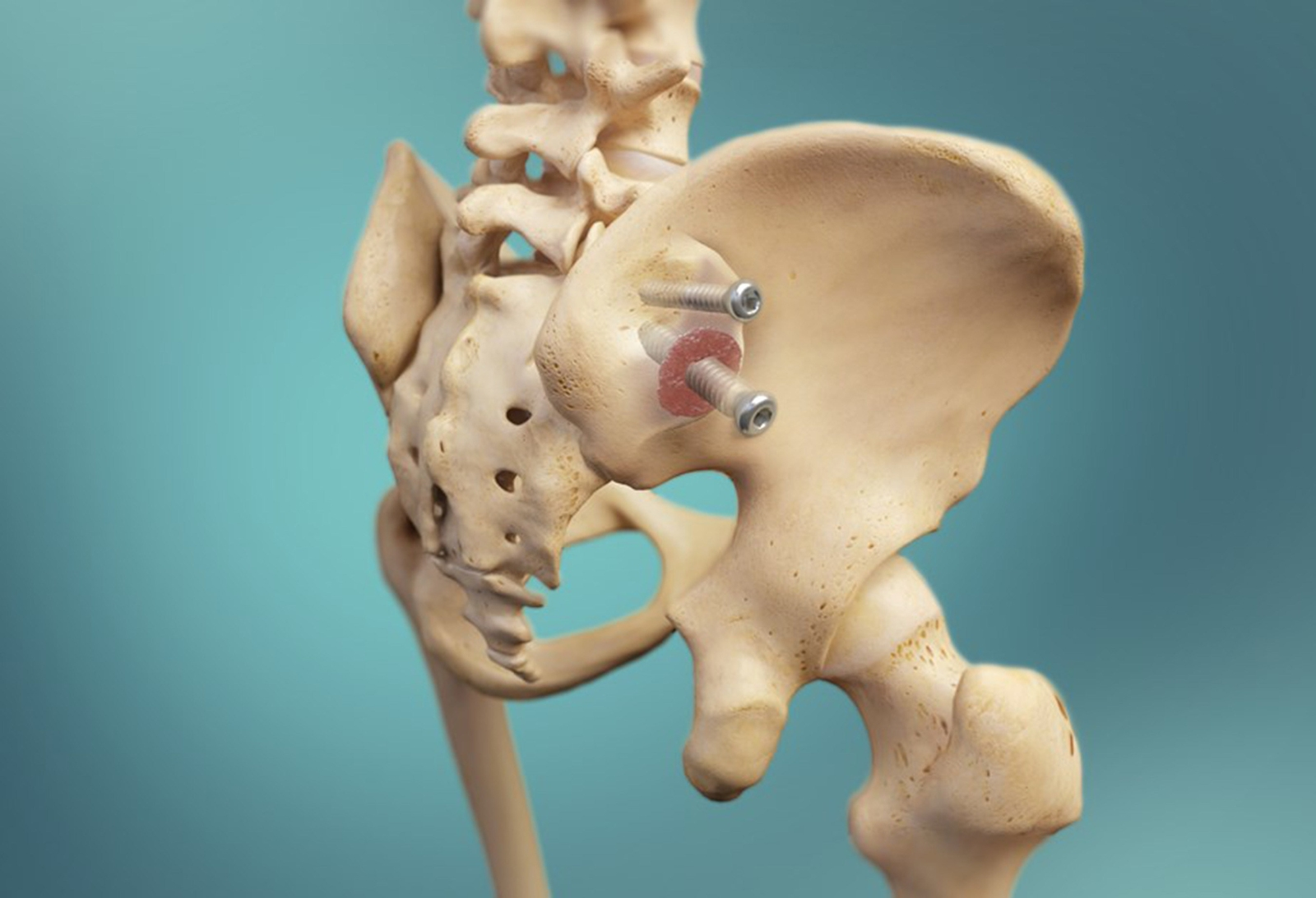 Zyga Releases 12-month Fusion and Clinical Results of Sacroiliac ...