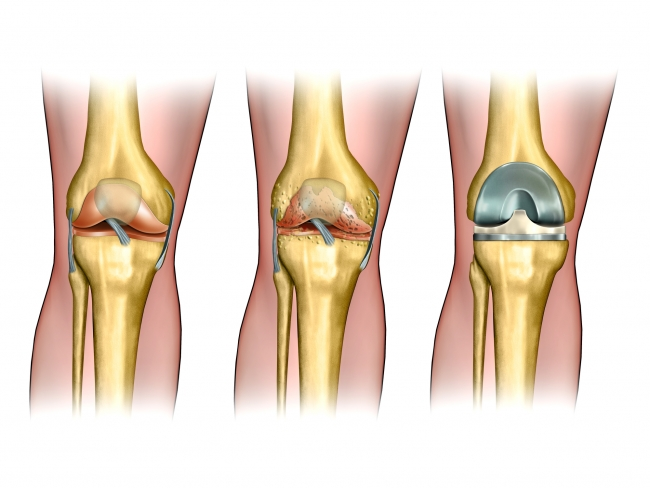 Best Knee Replacement Devices 2021 Global Knee Replacement Devices Market to Grow at a CAGR of 3.25