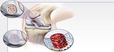 orthobiologics-1.jpg