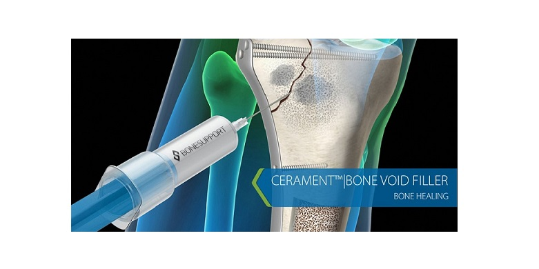 cerament-bone-healing-17897b-h900-1-12.jpg