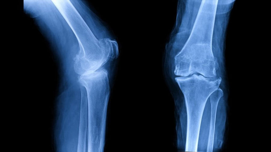 osteoarthritis-oa-knee-film-xray_shutterstock_756734566-900x506.jpg
