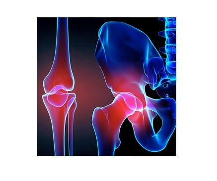 joint-replacement-123-1.jpg