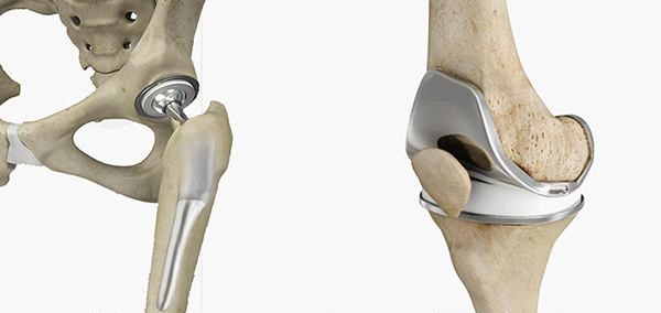 hip-and-knee-replacement-12bto.jpg